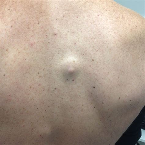 cysts in the skin picture 1