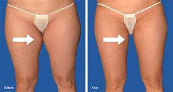 workout that get rid of cellulite and loose skin picture 9