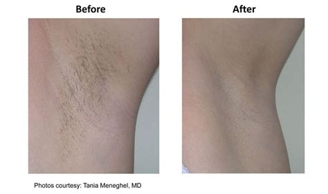 laser hair removal nj picture 11