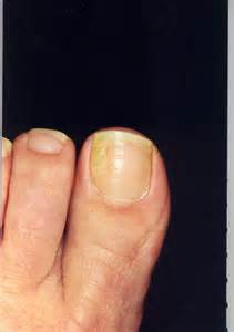 nail fungus prevention picture 5