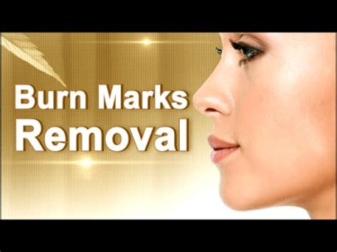 burn marks from hair removal creams picture 4
