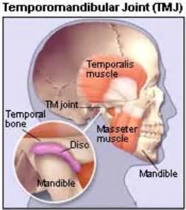 temporomandibular joint syndrome picture 5