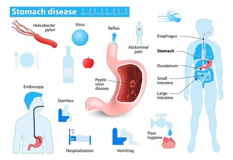 bleeding in the gastrointestinal tract treatment picture 6