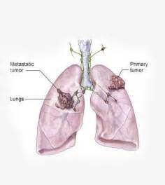 lung cancer cure picture 10