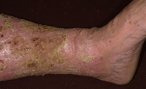 care for skin ulcers picture 11