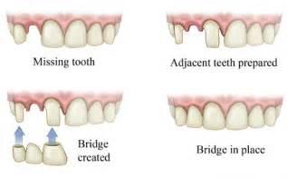 false teeth permanent picture 13