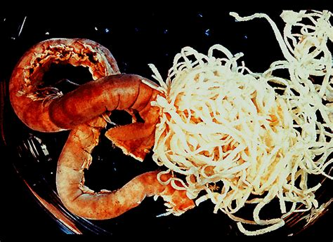 intestinal worms epson salt picture 13