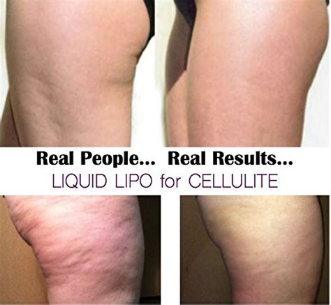most effective ingredients in cellulite cream picture 4