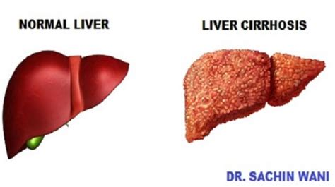 cirrhosis of the liver chest hair picture 6