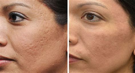 can lysine help acne scars picture 17
