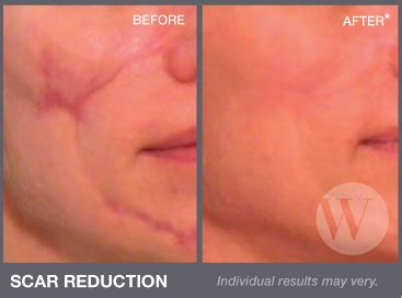 acne scar removers picture 11