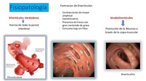 about the colon the name is diverpiculosis picture 13