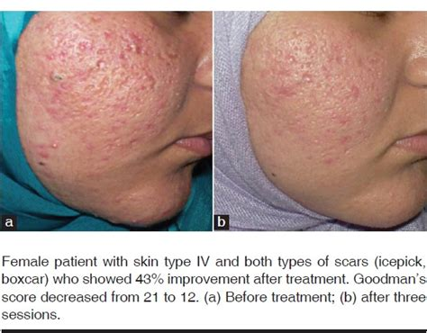 microdermabrasion for acne scars picture 3