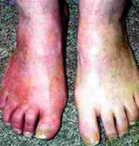 poor blood circulation in feet picture 3