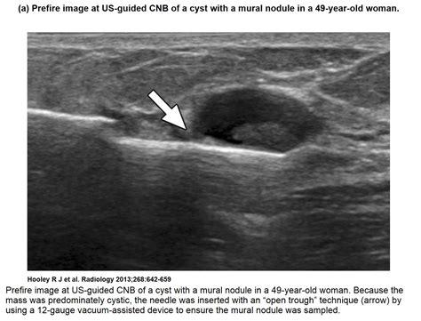 vacuum breast picture 2