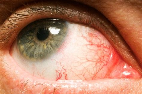 dry, red eyes, liver disease picture 2