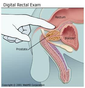 Prostate exam procedure and photos picture 7