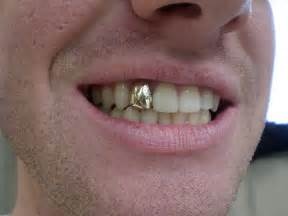 silver teeth caps picture 3