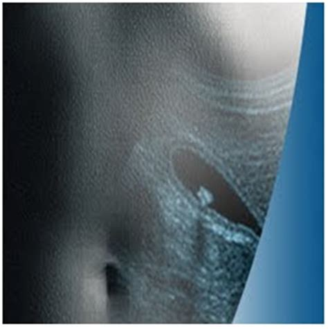 causes of burning sensation in bladder picture 9