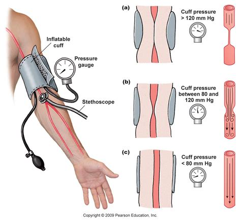 Arterial blood pressure picture 15