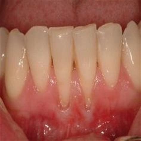 can natural teeth grow picture 13
