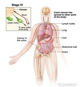 treatment for colon cancer if spread to one lymph node picture 3
