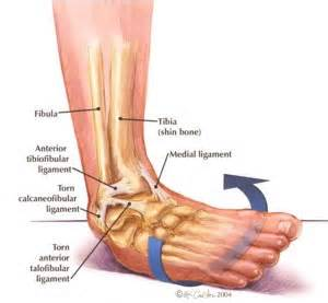 ankle joint effusion and ruptured archilles tendon picture 5