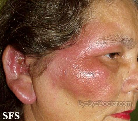 fungal infection of the skin picture 6