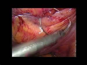bladder repair surgery exstrophy urinary picture 14
