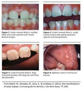 canker sores diet picture 10