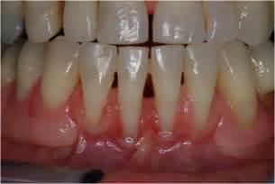 bone loss in teeth picture 3
