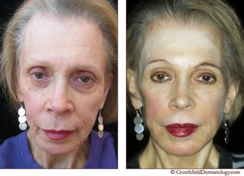 foundation for combination aging skin picture 13