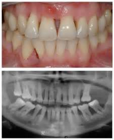 bone loss in teeth picture 1