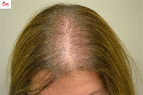 anemia causing hair loss picture 1