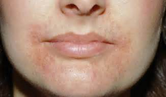 what causes for lips to rash and swell picture 11
