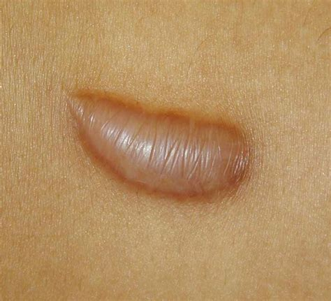 what causes acne picture 7
