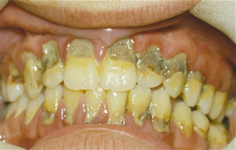 decaying teeth pictures picture 18