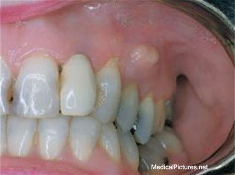 abcessed teeth and neck pain picture 7