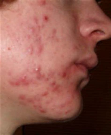 what is acne inflammation picture 3