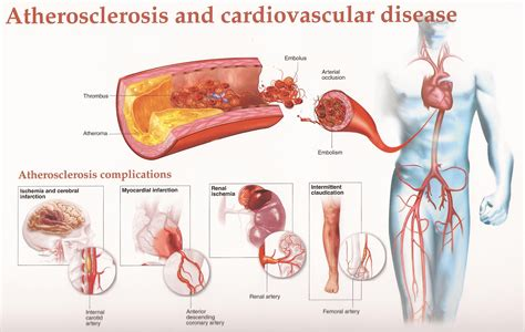 diet and arteriosclerotic heart disease picture 2