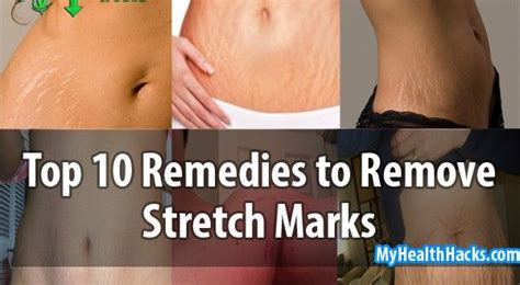 eating apples to remove stretch marks picture 2