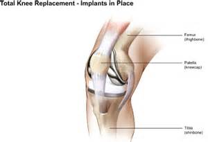 cost of knee joint replacement picture 10