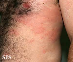 treatment of hives picture 9