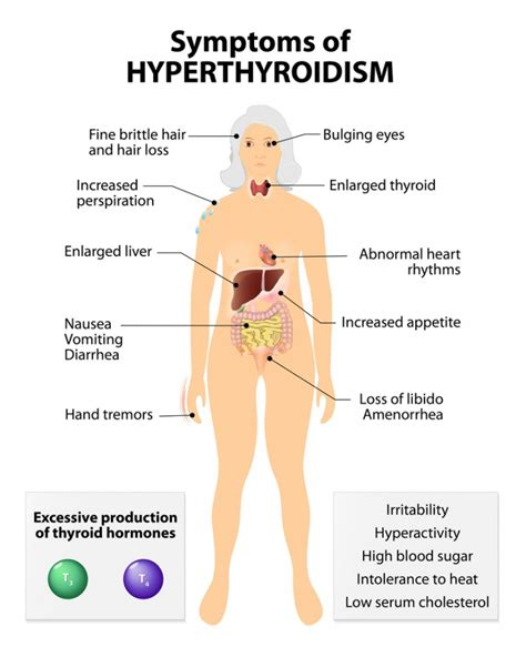 causes of overactive thyroid picture 10