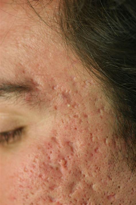 acnezine prys picture 6