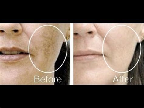 patchy lightened skin in areas picture 10