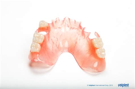can a tooth be added to a valplast picture 10
