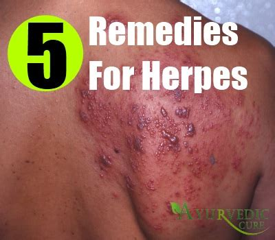 can natural pills kill herpes virus picture 6