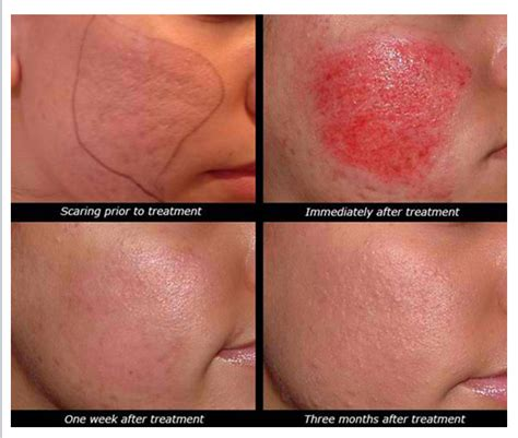fraxel laser for acne scarring picture 13
