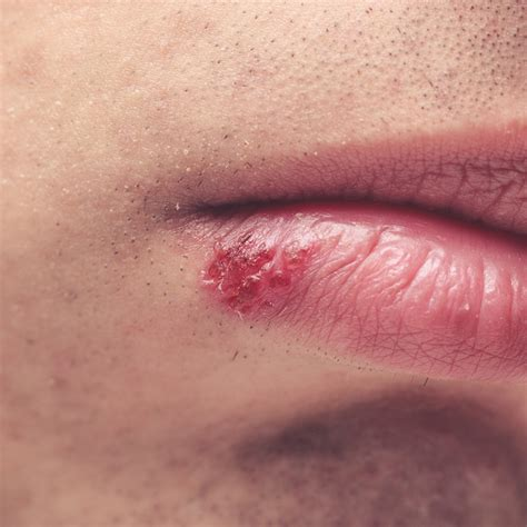 herpes symplex picture 7